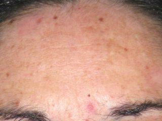 https://www.orshospital.rs/wp-content/uploads/2021/04/hiperpigmentacija-1-320x240.jpg