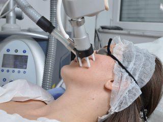 https://www.orshospital.rs/wp-content/uploads/2021/04/lasersko-podmladjivanje-2-320x240.jpg