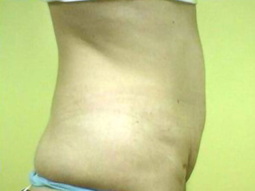 https://www.orshospital.rs/wp-content/uploads/2021/04/liposukcija-1.jpg