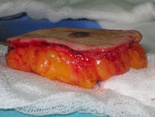 https://www.orshospital.rs/wp-content/uploads/2021/04/melanom-14.jpg