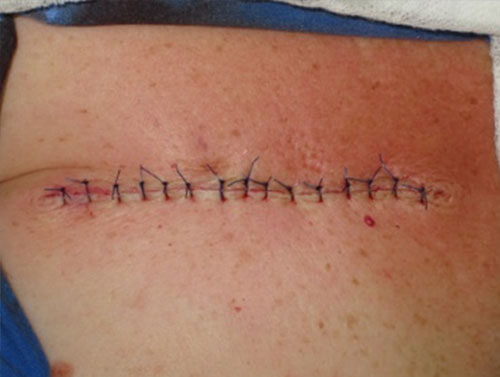 https://www.orshospital.rs/wp-content/uploads/2021/04/melanom-15.jpg