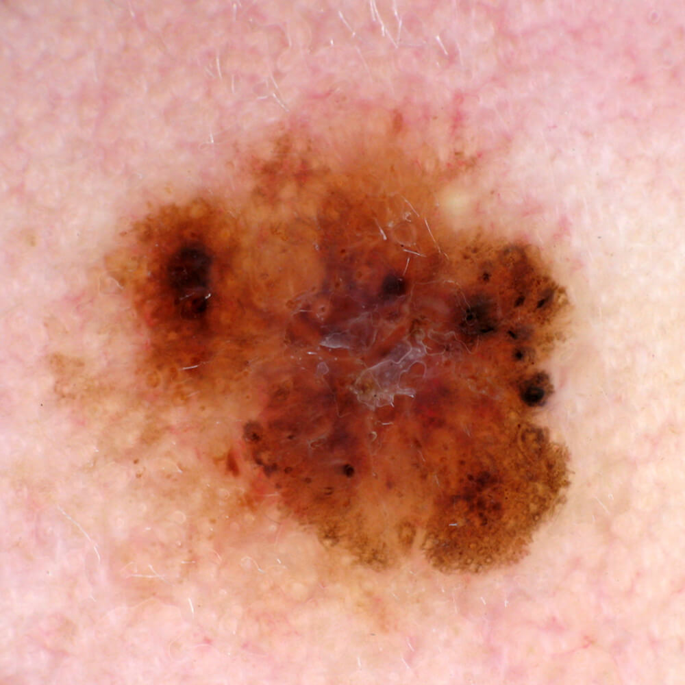 https://www.orshospital.rs/wp-content/uploads/2021/04/melanom-17.jpg