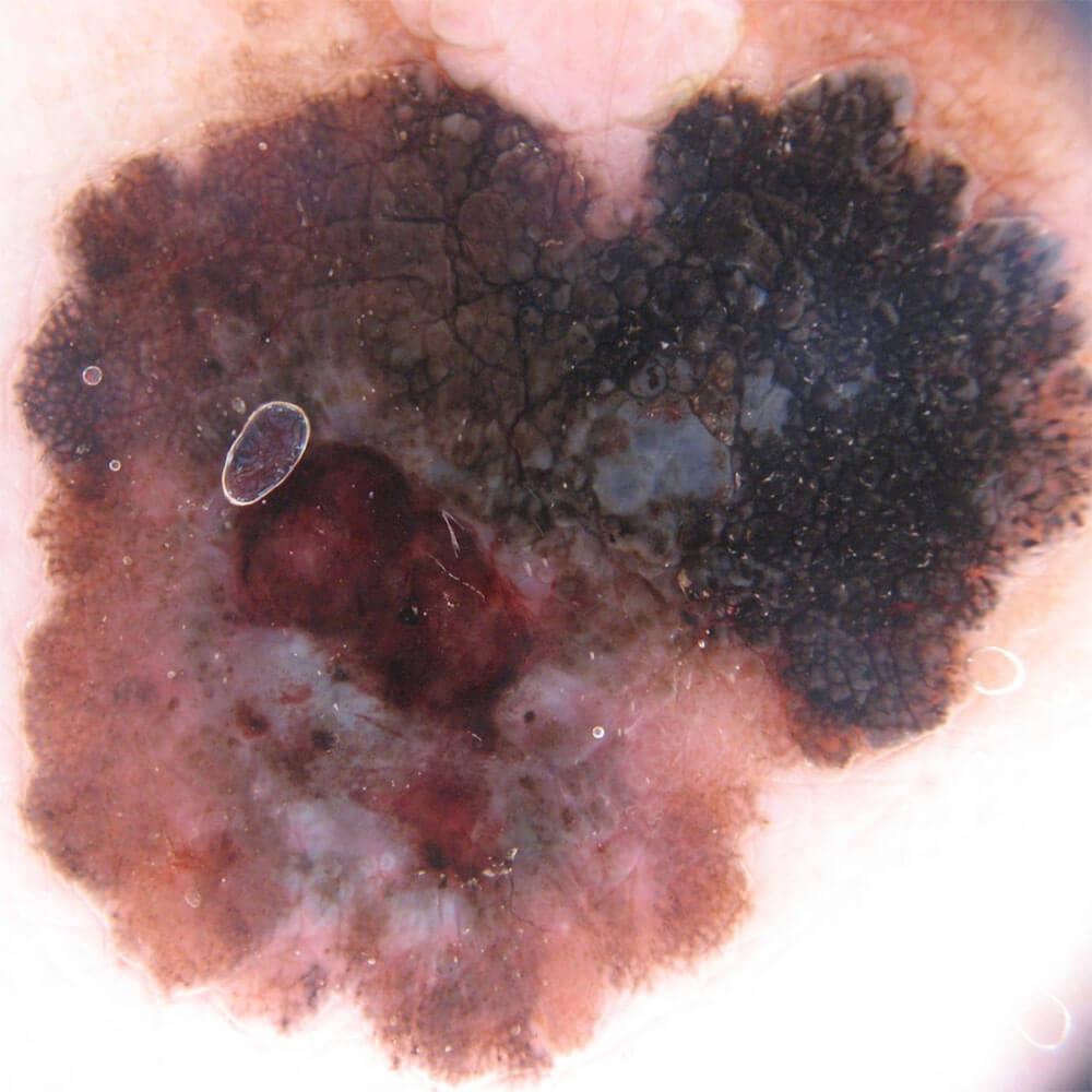 https://www.orshospital.rs/wp-content/uploads/2021/04/melanom-8.jpg
