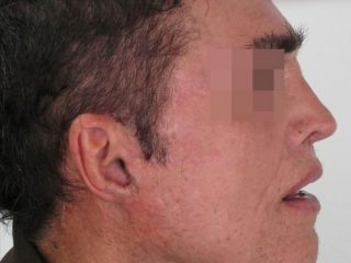 https://www.orshospital.rs/wp-content/uploads/2021/04/mini-facelift-2-320x240.jpg