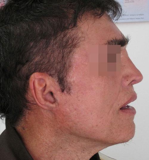 https://www.orshospital.rs/wp-content/uploads/2021/04/mini-facelift-2.jpg